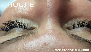 Ресницы - фото ДО и ПОСЛЕ (2)