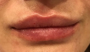 Revaness Lips 1 ml - photo before photo after (18)