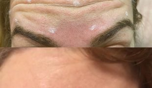 Уколы ботокса - Коррекция морщин лба