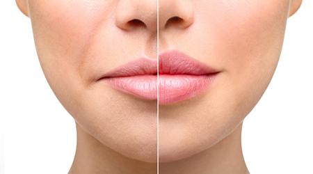 Контурная пластика - Коррекция губ