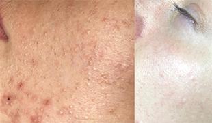 Косметология - Комплексное лечение кожи лица