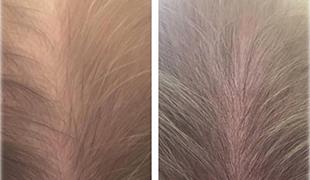 Мезотерапия волос