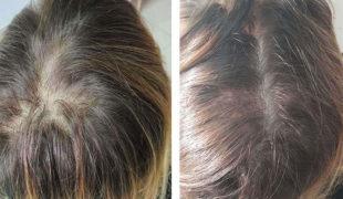 Мезотерапия волос (002)