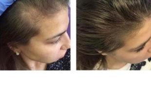 Мезотерапия волос головы : STAMIN C (фото 006)