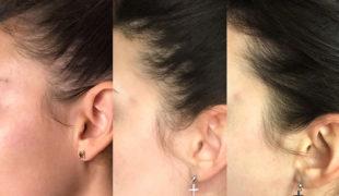 Мезотерапия волос и кожи головы в Киеве