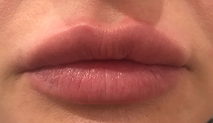 Revofil Lips 0.5ml - Увеличение объема губ
