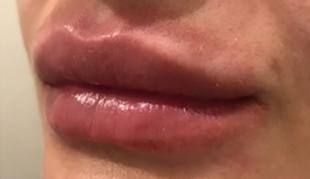 Revofil Ultra 1ml - Увеличение объема губ
