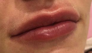 Revofil - Контурная пластика губ