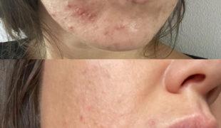 Комплексное лечение кожи лица