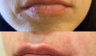 Коррекция формы губ филлерами
