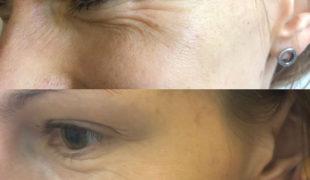 Коррекция мимических морщин вокруг глаз