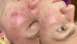 Косметология — Комплексное лечение кожи лица (фото 002)