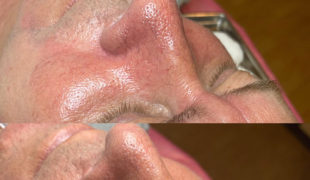 Лечение купероза (сосудистых звездочек на носу) (001) PRX-T 33